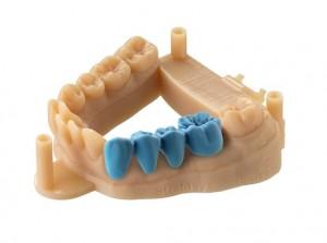 3д печать зубов и имплантов в стоматологии5