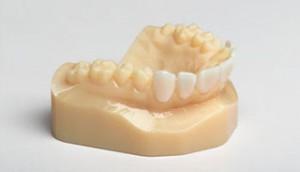 3д принтеры для стоматологии 4
