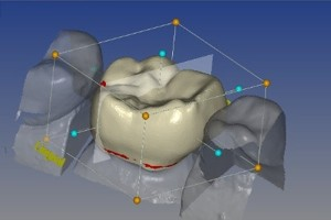 3д технологии стоматологии
