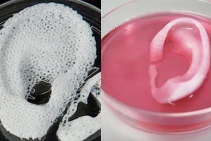 3D печать медицина