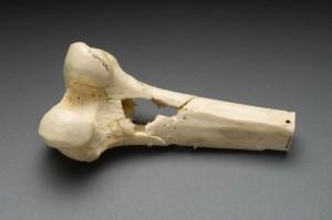3D печать костей на 3D принтере