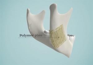3Dbioceramic3
