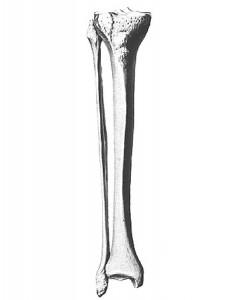 3Dplasticbones4