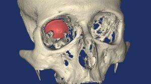 3D-печатный глазной протез2
