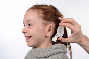 3D-печатный ушной имплантат