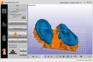3д модель ушного имплантата