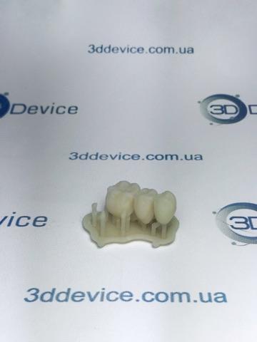 Модель зубов на Formlabs Form 2