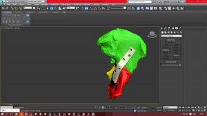 3D моделирование в медицине