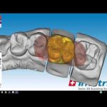 Стоматологическое 3D сканирование с IMETRIC IScan S120