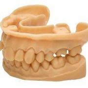 Стоматологическая фотополимерная смола NextDent Model
