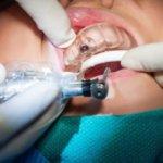 SLA смола для стоматологов купить