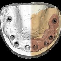 3D сканер зубов Харьков