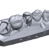 3D сканер зубов в Украине
