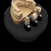 3D сканер зубов для стоматологов