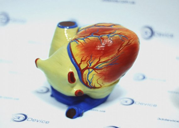 Анатомические 3D модели на 3D принтере