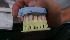 Зуби Formlabs Form 2