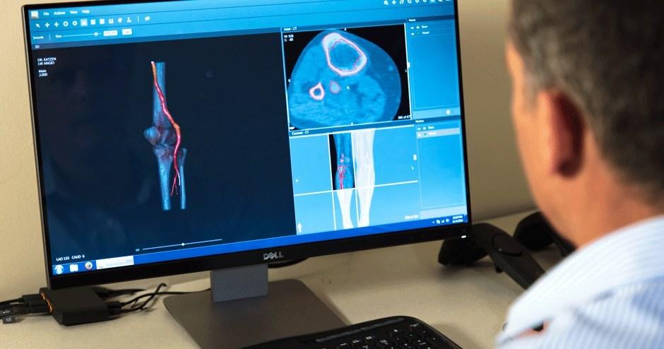 3D печать анатомической модели в несколько простых шагов