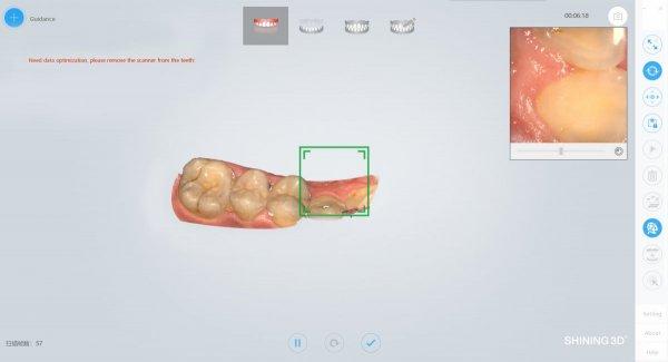 3D сканер Aoralscan